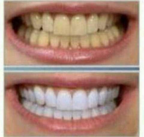 Seguros odontologícos prepago