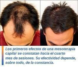 Tratamiento capilar anticaída del cabello - 0