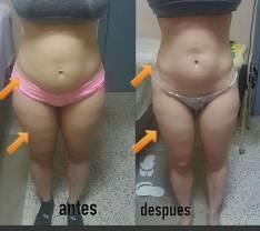 Tratamientos reductor de abdomen y piernas