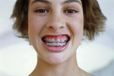 Seguro Odontologico