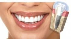 Seguros odontologicos