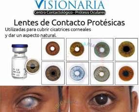 Lentes de Contacto Protesicas
