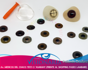 Prótesis oculares