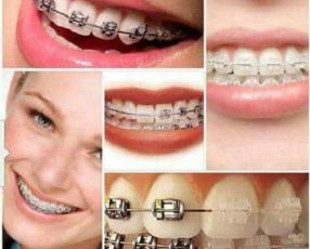 Seguros odontológico EPEM