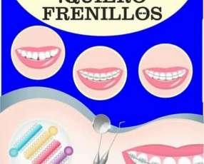 Seguro Odontológico y Médico VitalPlan promoción Frenillo