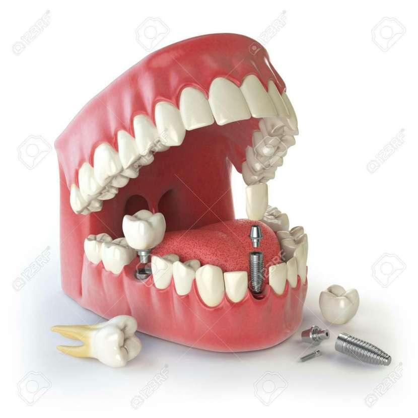 Plan odontológico - 3