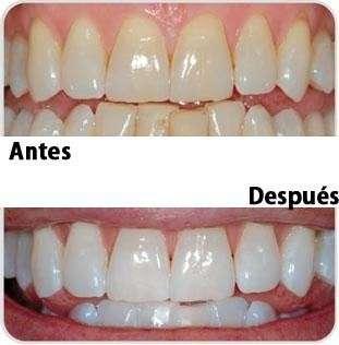 Seguros odontológicos M&M Odonto clínica - 4