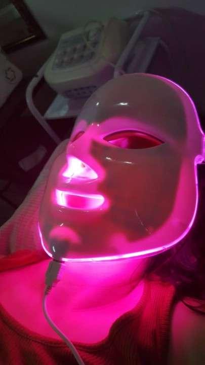 Rejuvenecimiento Facial - 6
