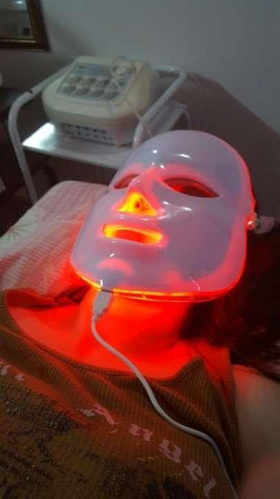 Rejuvenecimiento Facial - 4