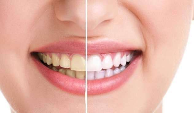 Planes odontológicos - 2