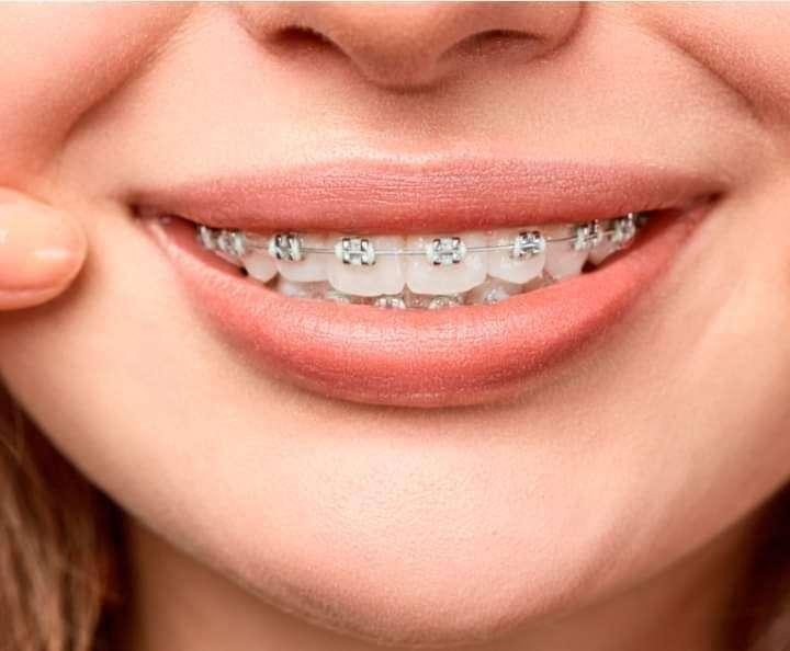 Planes odontológicos - 3