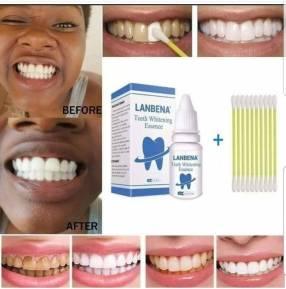 Blanqueador dental instantáneo