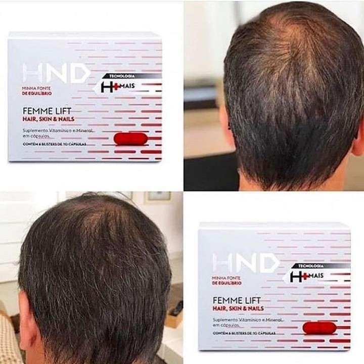 Cápsulas para caída del pelo - 0