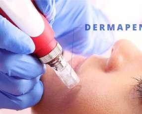 Tratamiento de cicatrices de acné Dermapen