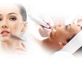 Tratamiento de arrugas con dermapen