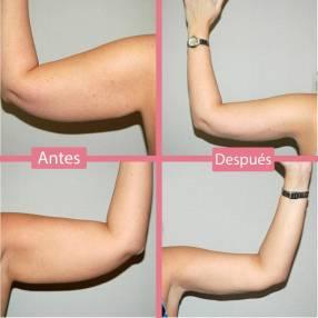 Reducción y flacidez de brazo