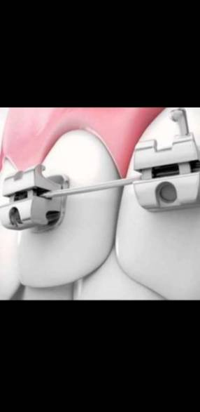 Plan frenillo ortodoncia plata 2 personas