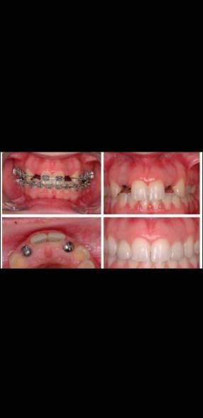 Restauración de dientes completo