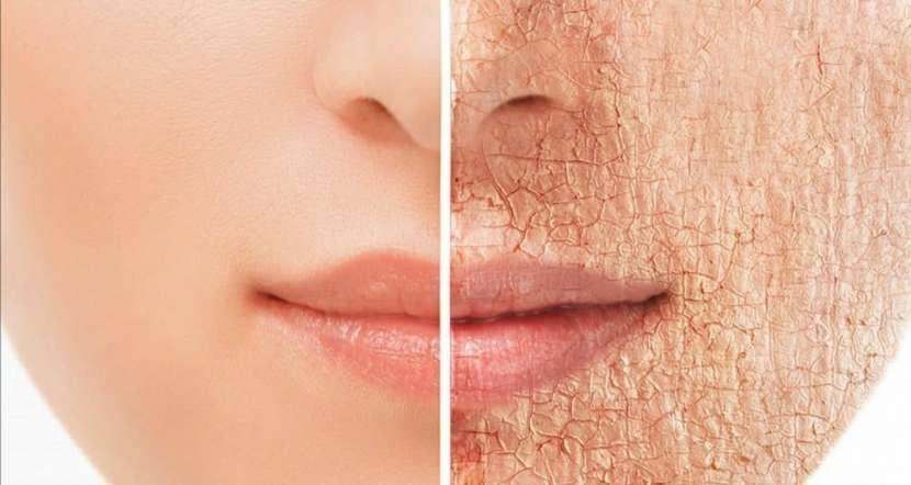 Reducción y tratamiento facial para Mamá - 3
