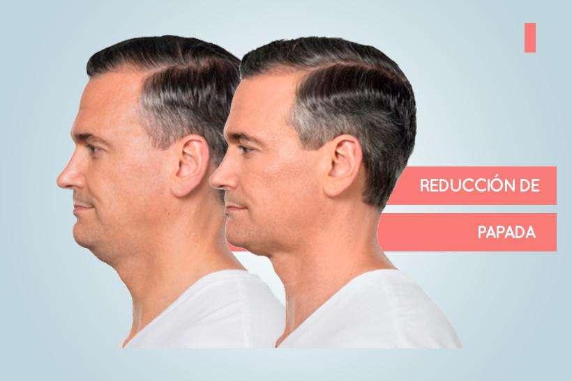 Reducción de papada - 3
