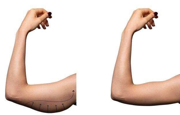 Reducción de abdomen brazo muslo o glúteos - 5