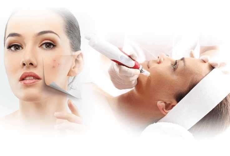 Tratamientos faciales a domicilio - 4
