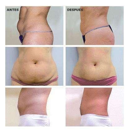Ultracavitación unisex liposucción sin cirugía - 5