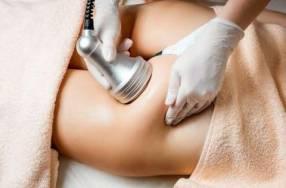 Reducción de abdomen y celulitis