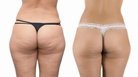 Reducción de abdomen y celulitis - 1