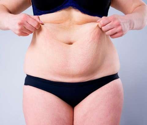 Reducción de abdomen y celulitis - 2