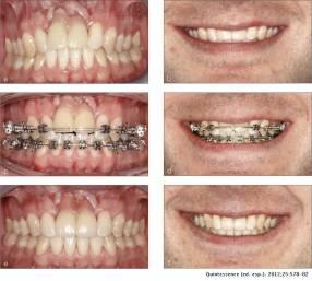 Seguro odontológico 2x1