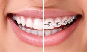 Planes odontológicos